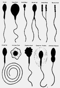 sperma normal (2 buah di kiri atas) dan sperma abnormal (sisanya)